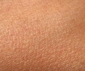 A bőr allergiáról!